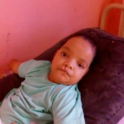 Assistido: Eduardo José de Araújo - Diagnóstico: Mielomeningocele Hidrocefalia